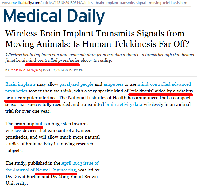 medical-daily-wireless-brain-implants